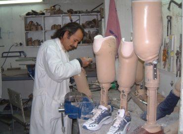 Scarpe ortopediche per protesi
