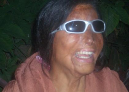 @uxilia appoggia il progetto Smile Again